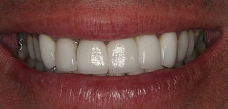 Beautiful smiel with staining at gum line removed