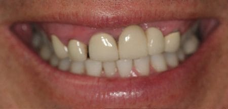 Teeth with dark staining at gum line