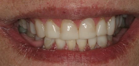 Repaired front teeth with healthy natural appearance