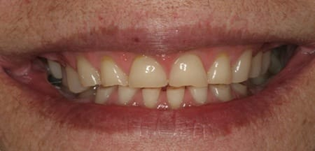 Short and worn front teeth