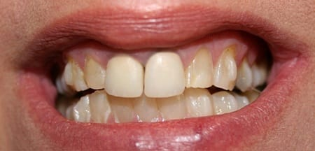 Severe tooth discoloration and decay