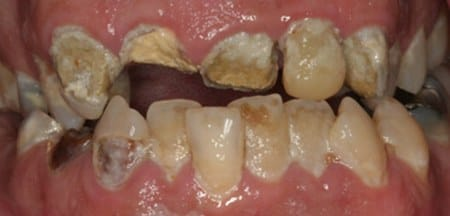 Advanced tooth decay and damage