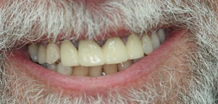 Natural looking flawless replacement teeth