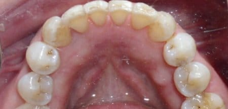 Bottom teeth with tooth colored fillings