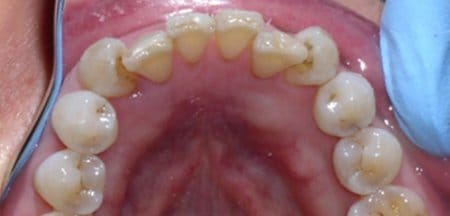 Top teeth with tooth colored fillings