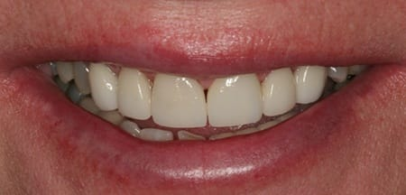 Front teeth after gap is closed