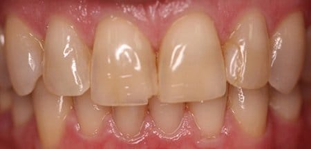 Yellowed and broken front teeth