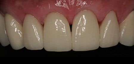 Perfectly repaired front teeth white healthy free from decay