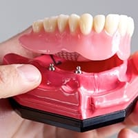 Model of implant supported dentures