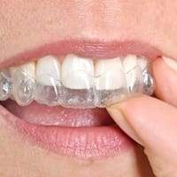 Invisalign in mouth