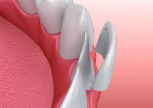 An illustration of porcelain veneers.